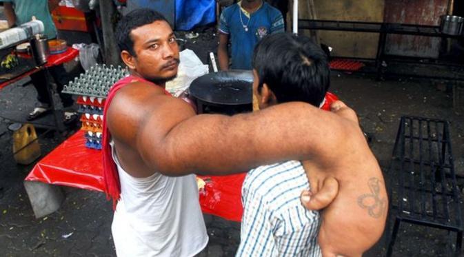 Bablu, lelaki asal India yang punya lengan seberat 20 kilogram. (Nagesh Ohal/Barcroft Media)
